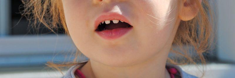 Dentsrose